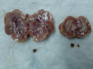 pielonefritis 2-2